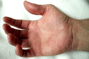 125 hand